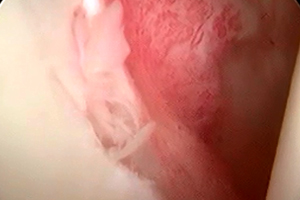 肩関節脱臼(手術前)